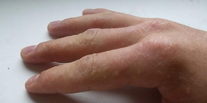 Мелкие пупырышки на пальцах рук