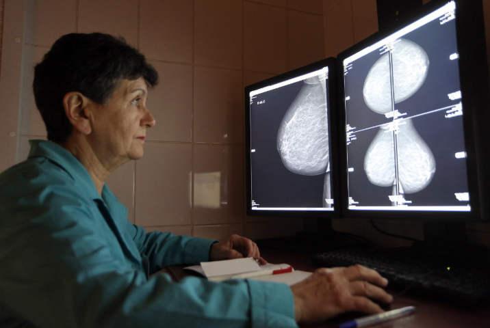 0aced1911 Skríning prsníka alebo mamografia je jednou z najdôležitejších pre ženy.