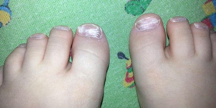 Вросший ноготь на большом пальце ноги форум
